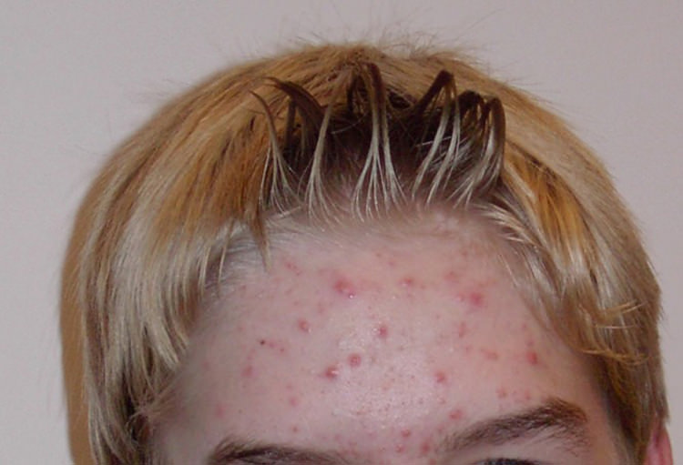 Pickel und Akne in der Pubertät