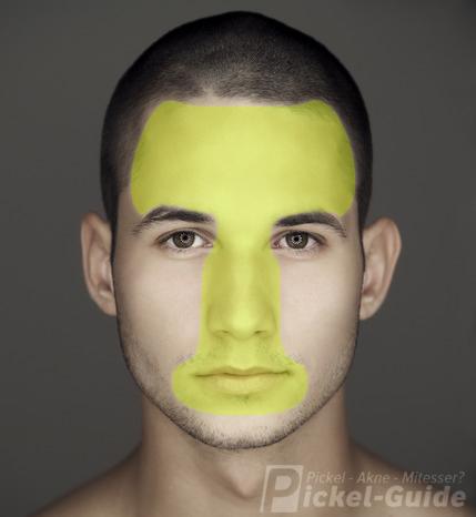 T-Zone im Gesicht